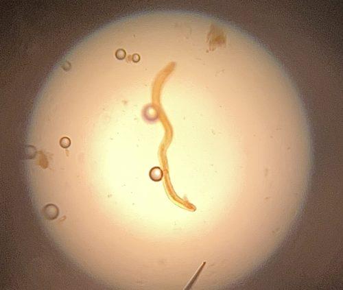 Trichostrongylus